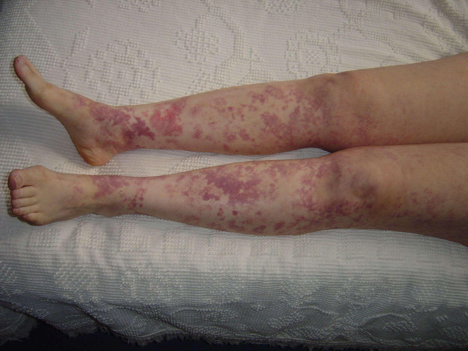 My Legs with rash from vitamins