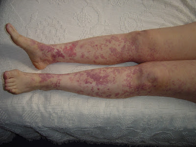 My Legs with rash from vitamins.jpeg