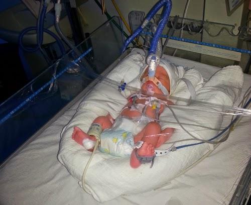 masalah bayi pramatang