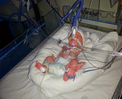 Premature-baby