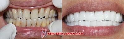 những điều cần biết về bọc răng sứ -15