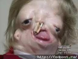 Treacher Collins Syndrome Born Without A Face Girl