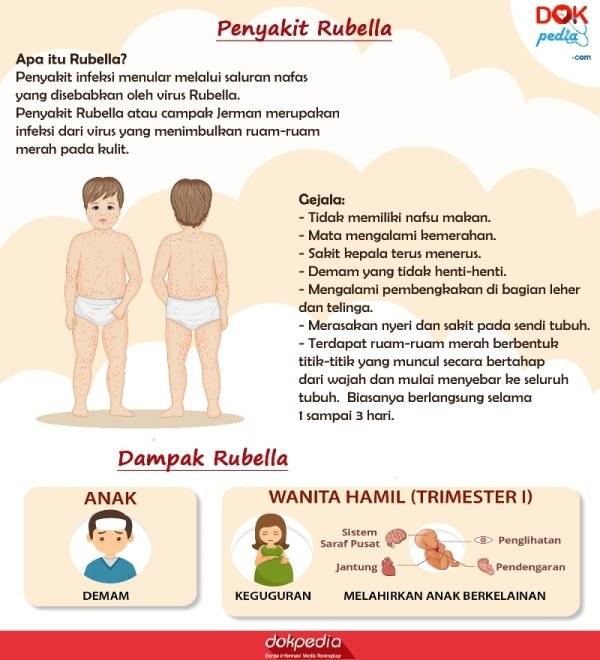 gejala rubella