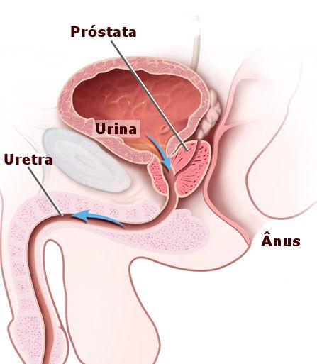 6 exames de próstata: como são feitos, idade e preparo - Tua Saúde