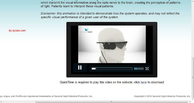 Bionic eye (artificial retina) for blinds, Argus II lets them see partially; unbelievable but true, is FDA approved