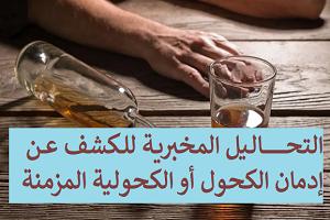 الواسمات الكيميائية لإدمان الكحول أو الكحولية المزمنة