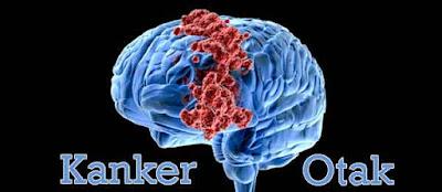 Cara Mencegah Kanker Otak Secara Alami