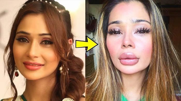 Sapna Babul ka and Bidaai tv show actress Sara khan Lip surgery pics