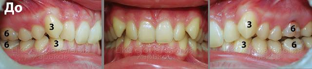 смыкание зубов в боковых участках по II класу