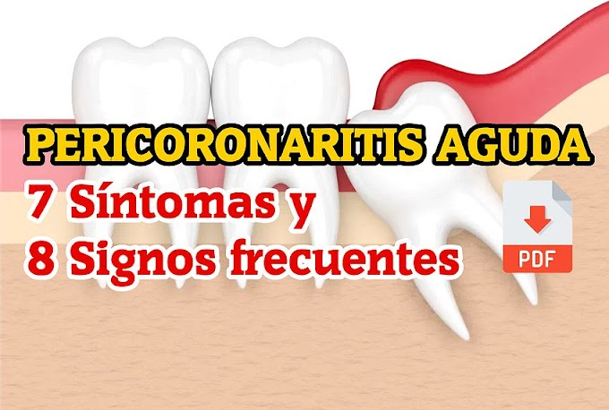 PDF: Pericoronaritis Aguda - 7 Síntomas y 8 Signos frecuentes