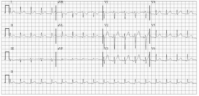 ECG of acute pericarditis in rheumatoid arthritis