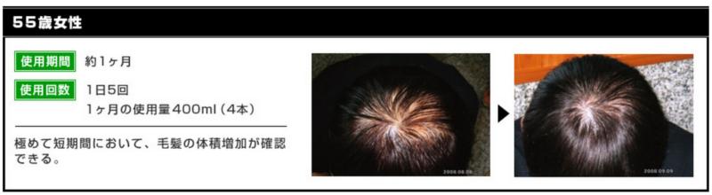 髪を太くする育毛剤「ヘアーリスペクト」の効果を評価してみた!