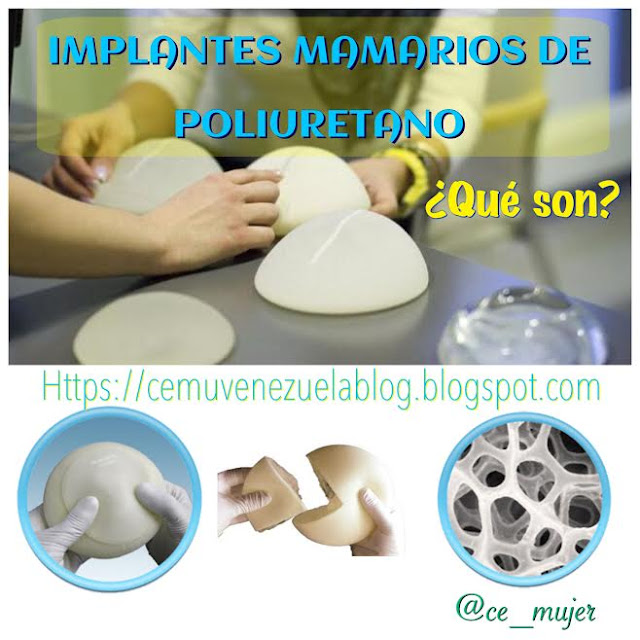 Cemuvenezuela implantes mamarios de poliuretano - Silicona de poliuretano ...