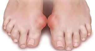 Obat Gout Akut (Pirai / Asam Urat)
