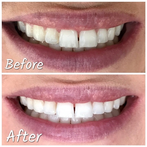 Thrifty Wife, Happy Life- Professional teeth whitening at home