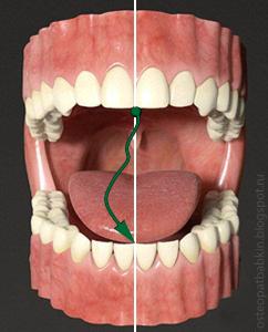 девиация нижняя челюсть отклоняется со средней линии, но потом снова возвращается на неё.