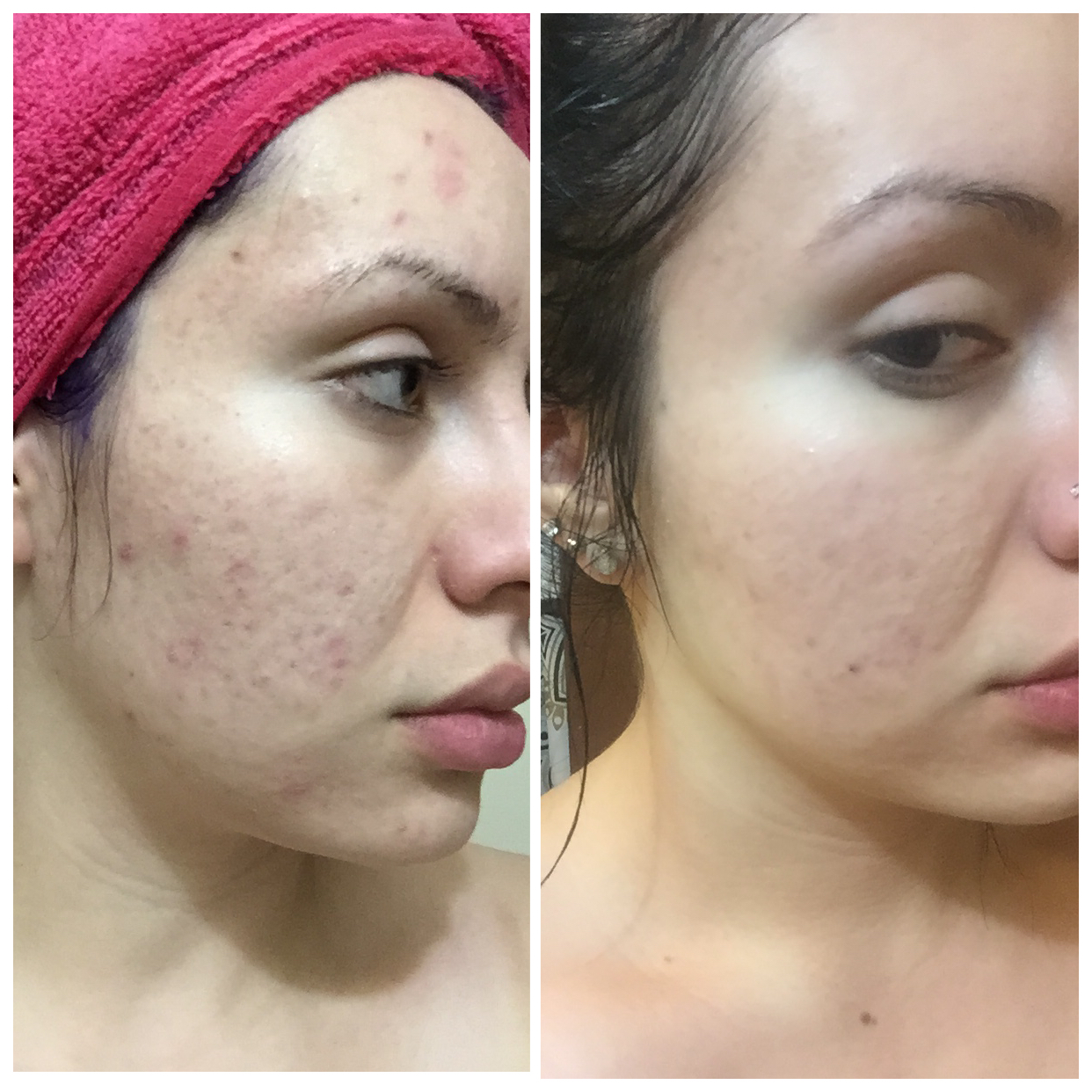 Products Glycolic Acid Skin Care