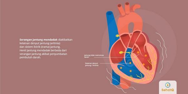 Pengertian-Henti-Detak-Jantung-Mendadak-Gejala-dan-Cara-Mengatasinya.