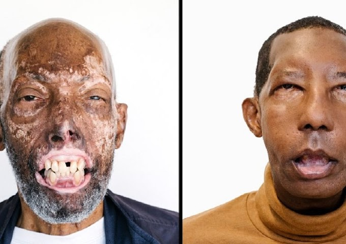 After 18 surgeries, man gets new face to become first African-American face transplant recipient