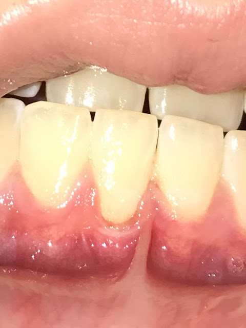 weakening of outer layer of teeth