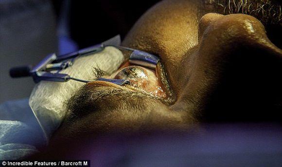 Ngỡ ngàng những ca phẫu thuật thẩm mỹ độc nhất vô nhị