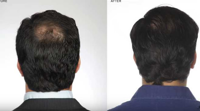 5 Confirmed Ways to Stop Hair Loss 2020