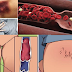 Early But Dangerous Signs of Blood Clot You Shouldn't Ignore