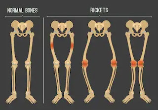 Rickets is common disease due to lack of vitamin D