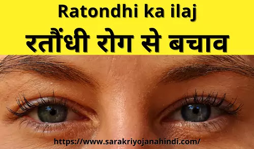 Ratondhi ka ilaj | रतौंधी रोग से बचाव