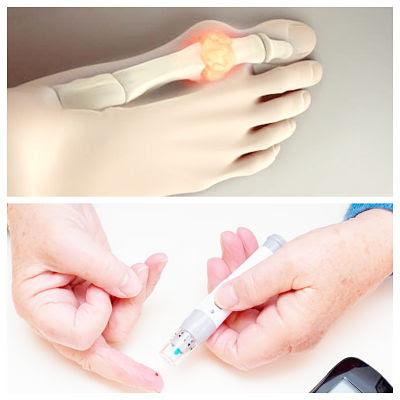 Los Medicamentos para la diabetes reduce el riesgo de gota