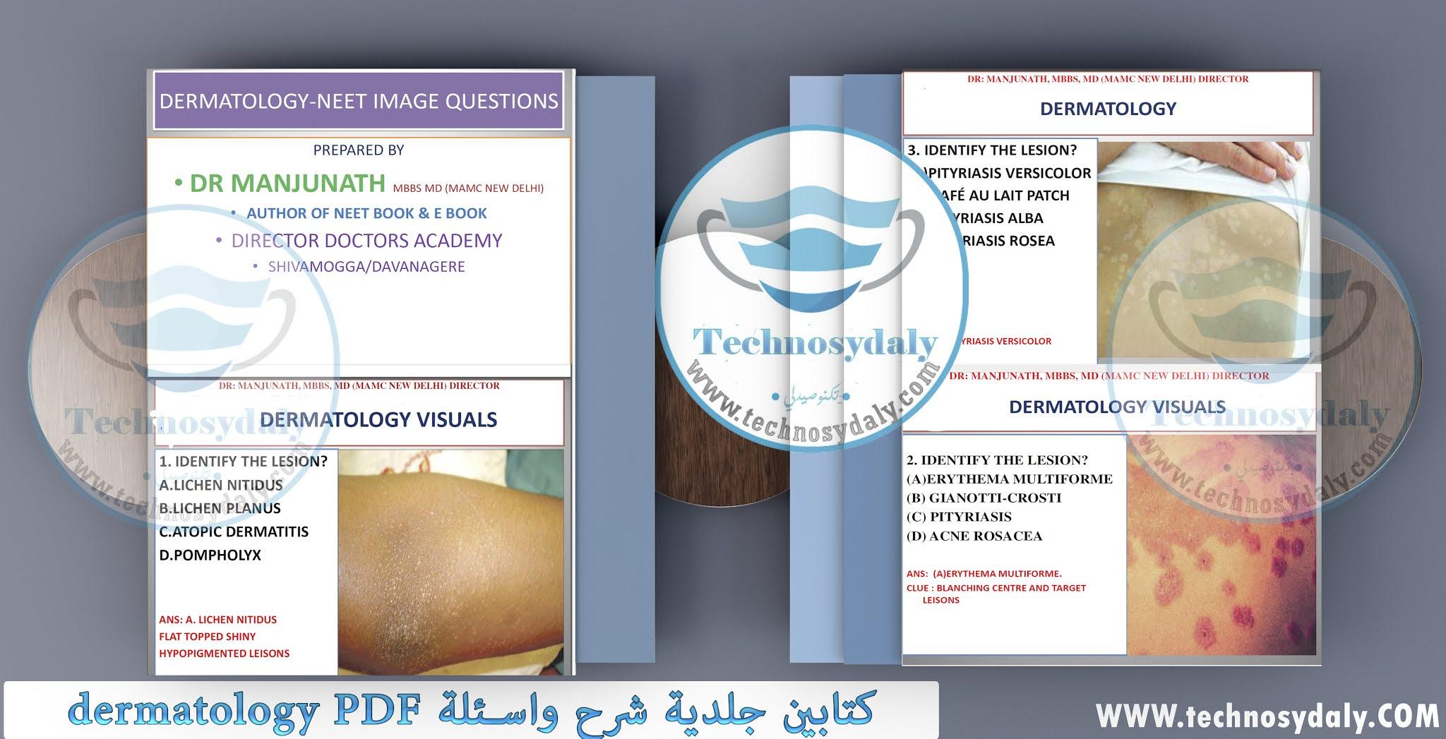 كتابين جلدية شرح واسئلة dermatology PDF هام جدا للصيادلة
