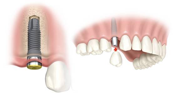 Cấy ghép răng Implant nha khoa ở đâu tốt, giá bao nhiêu ?