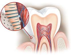 pourquoi les dents sont sensibles au froid