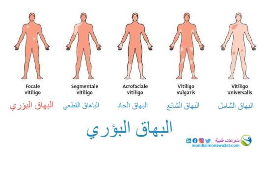 البهاق البؤري، اسباب البهاق البؤري، انواع البهاق، البهاق الموضعي، علاج البهاق البؤري، Focal Vitiligo