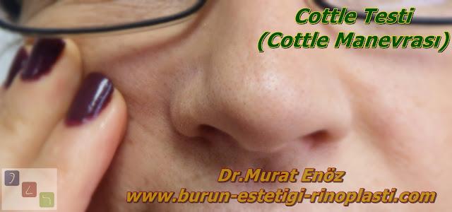 Cottle Testi (Cottle Manevrası)