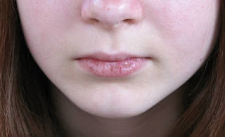 cracked lip balm at home in urdu