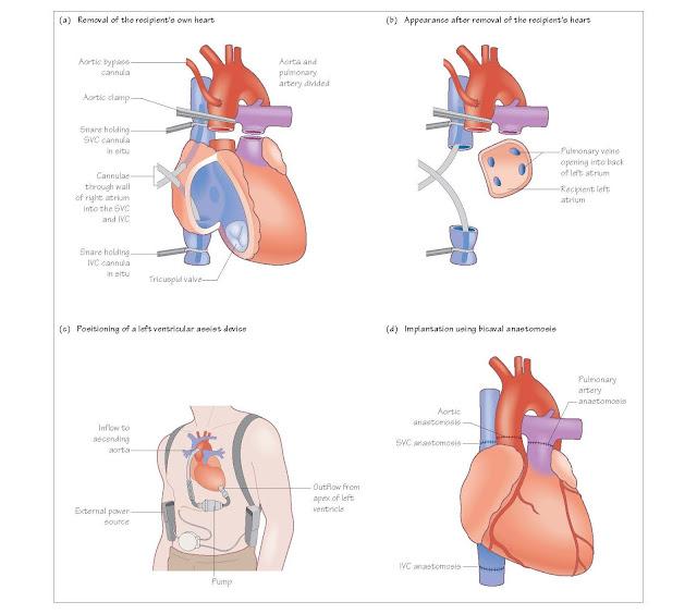 Heart Transplantation: The Operation, Transplanting the heart