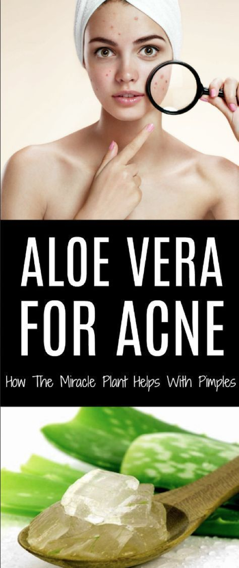 Best DIY Aloe Vera recipes for Acne