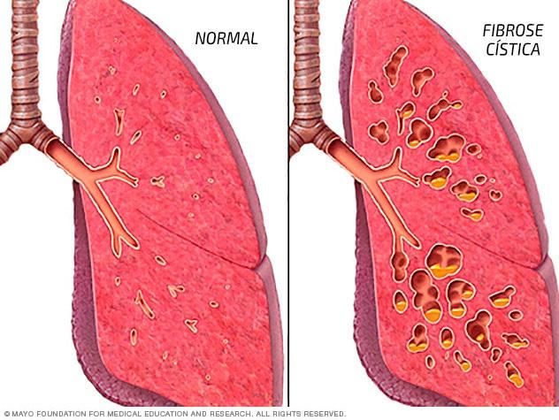 https://www.oblogdomestre.com.br/2020/08/FibroseCisticaMucoviscidose.Saude.html