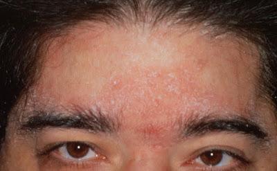 Dermatitis Eksfoliatif Generalisata – Penyebab, Gejala, Cara Mengatasinya