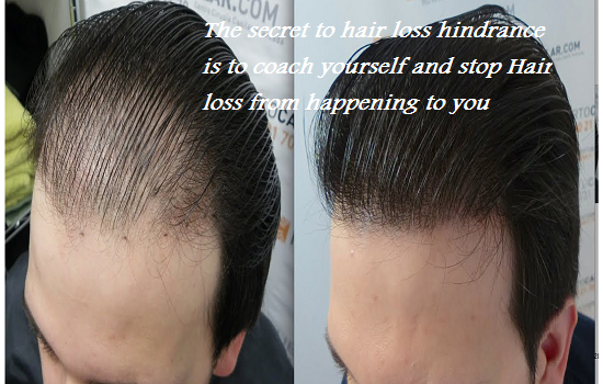 The secret to hair loss hindrance is to coach yourself and stop Hair loss from happening to you