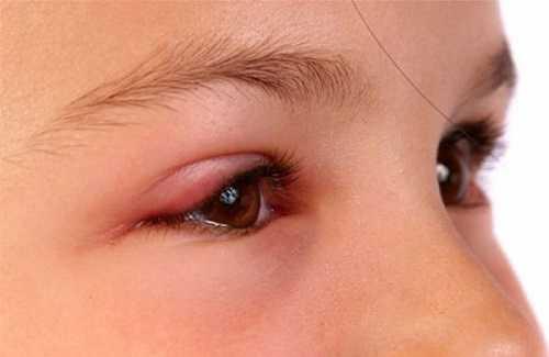 Tác hại khi cắt mí mắt nhầm địa chỉ là viêm bờ mi mắt