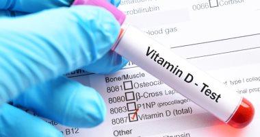 سعر تحليل فيتامين د في مصر 2021
