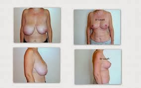 Savoir tous sur la Réduction mammaire