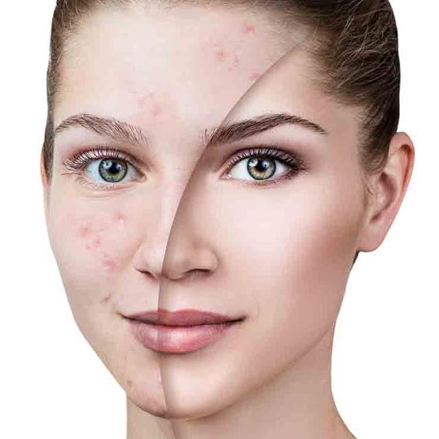 Creating acne