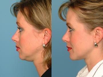 face aerobics exercises to tone and tighten slack face