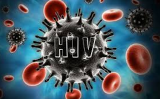 HIV/AIDS And CNS Infections