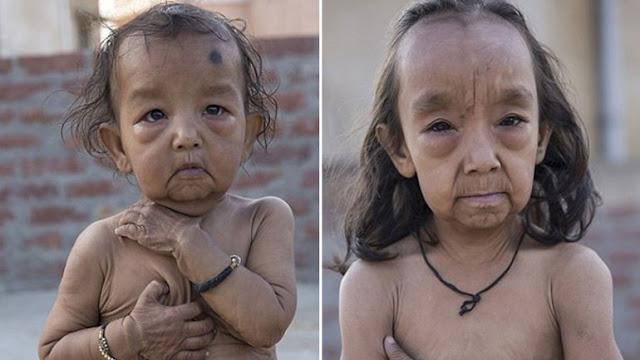 Los 8 niños más extraños de la historia. Son los casos más insólitos registrados.- 7