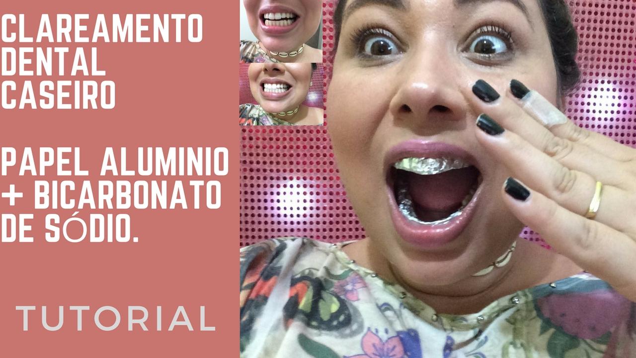 Clareamento Dental Caseiro Bicarbonato E Aluminio Club Vip Da