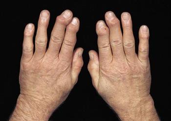 az ujjak ízületeire nyomva fájdalom)